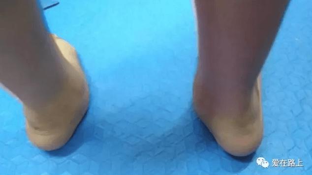 выбор обуви детям с ДЦП