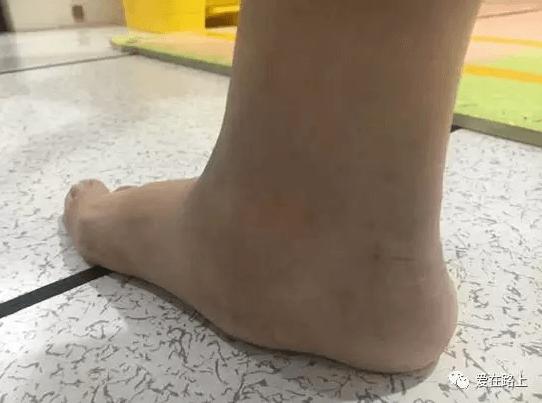 Выбор обуви при ДЦП